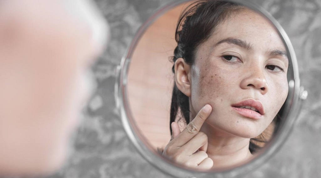 What Is the Best Treatment to Lighten Hyperpigmentation